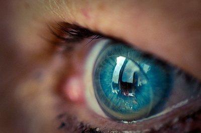 Vormvaste contactlenzen (harde contactlenzen) bij Sluis Optiek en Optometrie