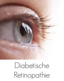 Diabetes_SLUIS_OPTIEK_PUTTEN_SIDE_Sub